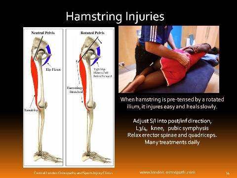 hamstring injury treatment by sports osteopath and sports physio